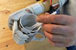 Электромеханический протез руки, фото из архива